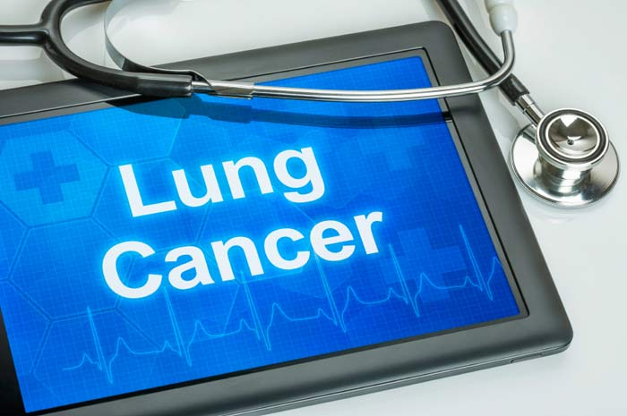 Public's beliefs around lung cancer sought for new study
